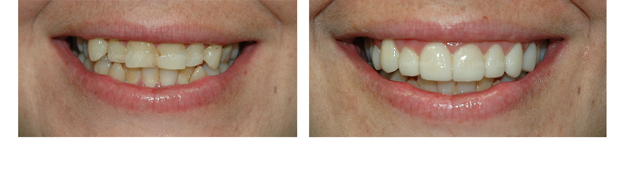 crooked teeth before after photo - porcelain veneers