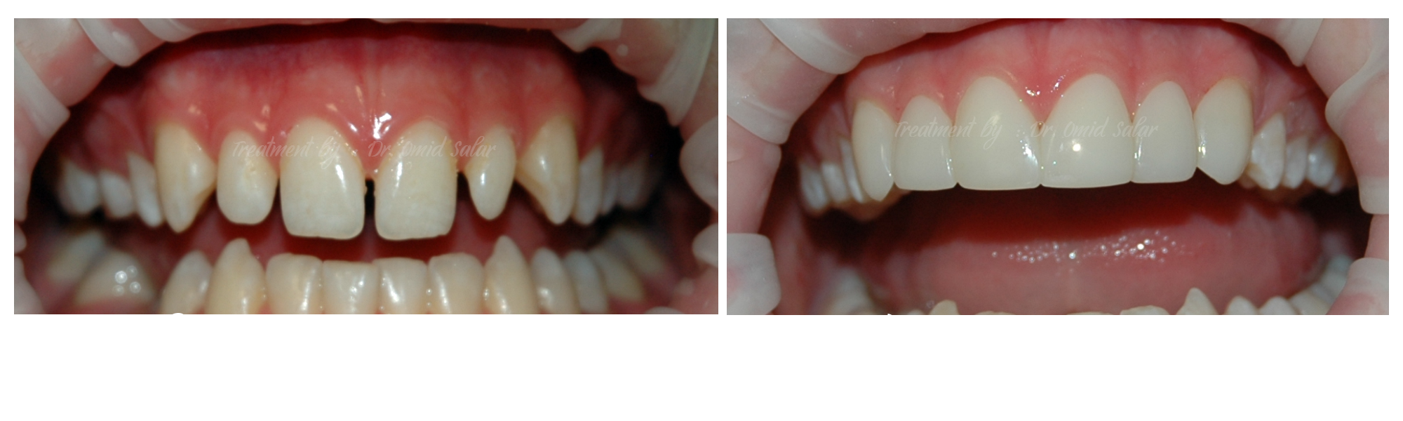 teeth reshaping - before after photos - composite veneers
