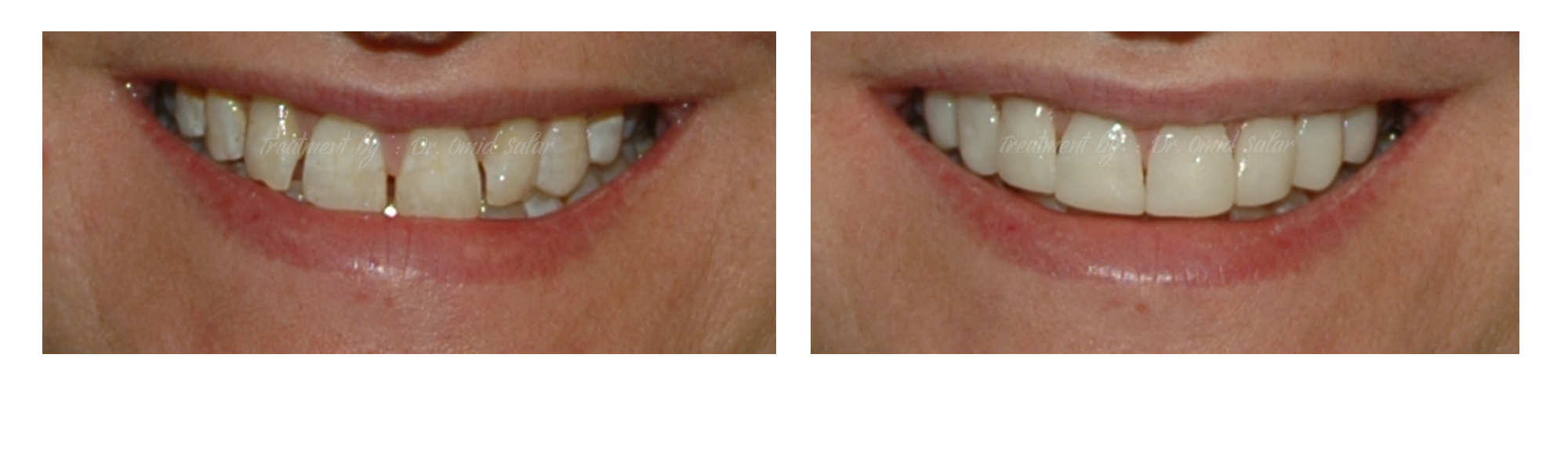 Composite Veneers Smile - closing gaps between teeth