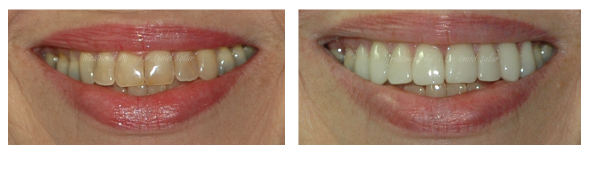 Porcelain Veneers - Smile