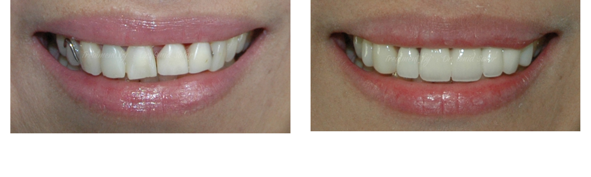 Discolored teeth plate before after photos - Dental Bridge - Veneers