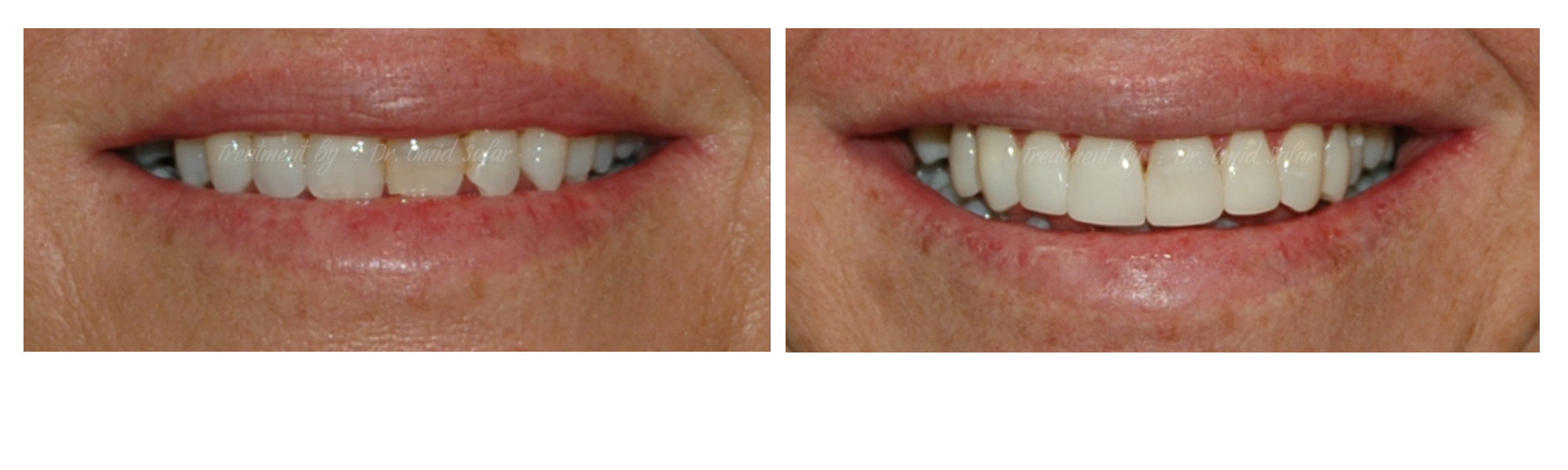 discolored teeth before after photos - composite veneers