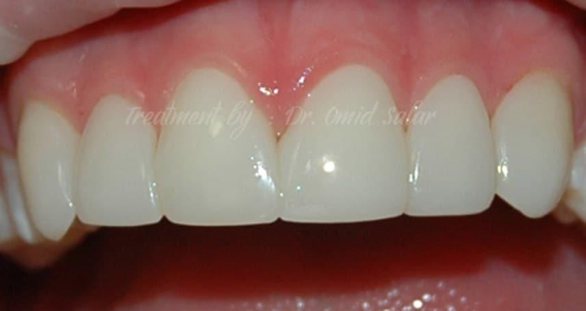 closing gaps using composite veneers