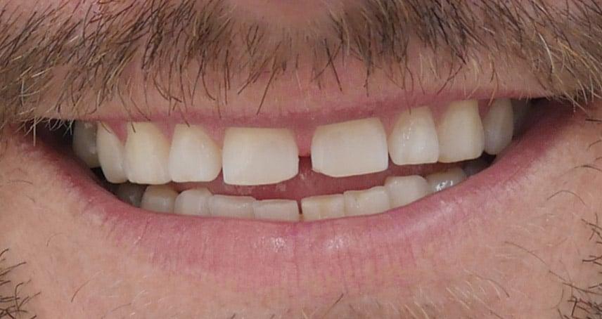 Gaps between teeth and grinding