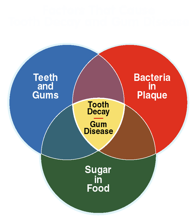 Tooth Decay Diagram